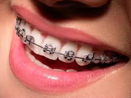 Zahnspange aus Metall