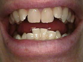 Zahnfehlstellung von einzelnen Zähnen