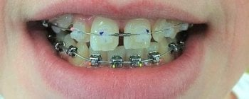 mix of clear and metal braces