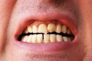 A broken tooth can be over-crowned