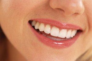 Weißere Zähne durch Zahnbleaching