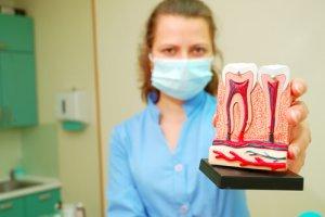 Alternative Mittel stehen bei einer Zahnwurzelentzündung nicht wirklich zur Debatte.