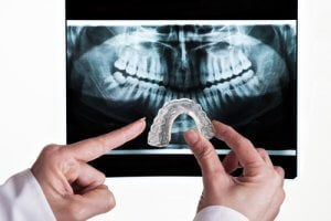 Röntgenfoto und Zahnschiene