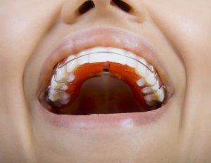 Drähte um Zähne