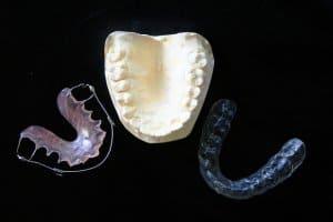 Aligner und klassische Zahnspange