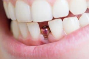 Ein Zahnimplantat in der Einheilphase im unteren Kiefer für Brücke oder Implantat.