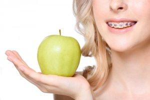 Die Zahnspange vorher nachher Erfahrungen hängen vom richtigen Umgang mit der Spange ab. Man solle den Apfel beim Tragen von Brackets meiden.