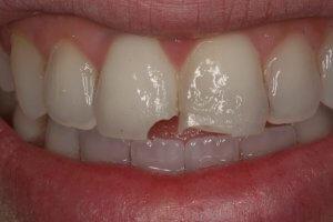 Eine Ecke vom Zahn abgebrochen