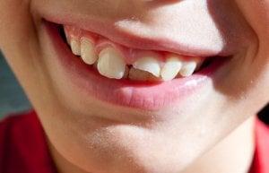 Langzeitschäden nach Zahnverletzung- Schneidezahn abgebrochen