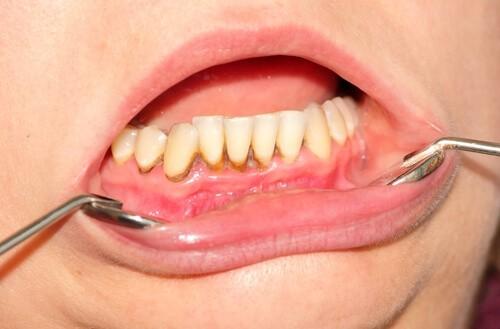 Bei dieser Gingivitis zeigt der Zahnarzt die Zahnfleischentzündung