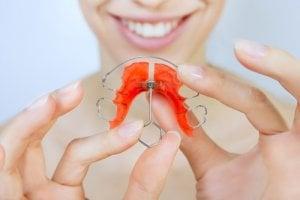 Die lockere Zahnspange kann auch ein Retainer sein, der nach der Tragezeit der eigentichen Spange, eingesetzt wird.