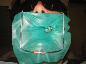 Wiedereinsetzen des abgebrochenen Zahns