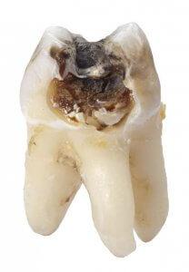 Von innen zerstörter Zahn durch Karies