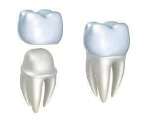 Die hälfte des Preises für Zahnersatz bezahlt man in der Klinik Hospitadent