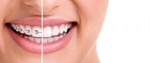 Zahnspange Lächeln