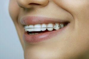 Lachen mit loser Zahnspange
