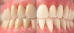 Zähne selber bleichen