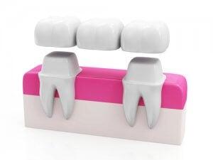 Methoden zum Schließen der Zahnlücke