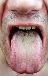 Mann zeigt seine belegte Zunge. Mundpilz ist nicht gefährlich aber unangenehm.