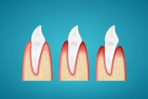 Parodontitis kann Zahnfleischbluten und Zahnfleischrückgang verursachen