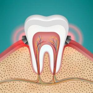 Zahnfleischentzündung und -bluten hat mit Bakterien zu tun.