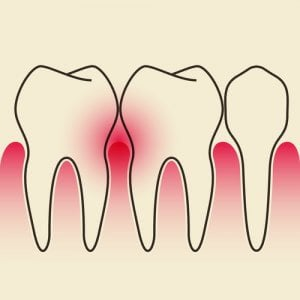 Blutendes Zahnfleisch durch Parodontose