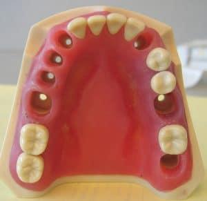 Die Kosten zum Füllen einer Zahnlücke können stark variieren.