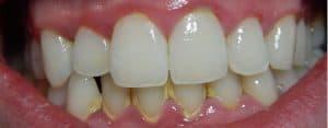 Offene Zahnhälse durch Zahnstein und mangelnde Mundhygiene