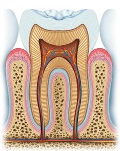 Zahnfleischrückgang durch Karies und Parodontose.