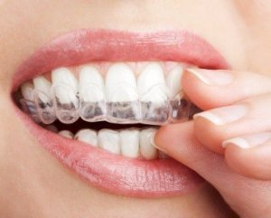 Keine feste Zahnspange