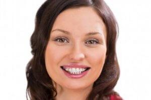 Die feste Zahnspange mit Keramikbrackets, die effektiv und wirkungsvoll ist.