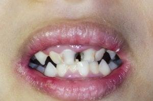 Zahnfäule ist beim Kind schmerzhaft.