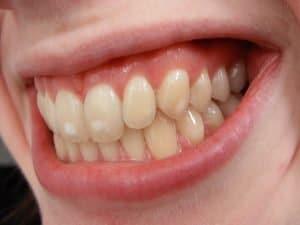 flecken an den Zähnen.