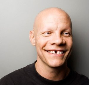 Ein Mann mit Zahnlücke im Frontzahnbereich, der ein breites Lächeln hat, ist abgebildet.