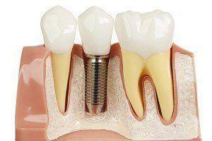 Den Zahn ziehen für ein Implantat ist eine schmerzfreier Routineeingriff.