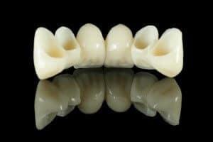 Zahnbrücken ersetzen sogar das Implantat.