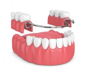 Die Zahnprothese Kosten bei einer Teilprothese richten sich hauptsächlich nach dem Aufwand.