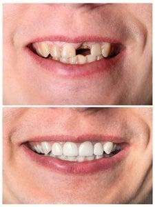 Was kostet eine Zahnprothese? Frau mit fehlendem Frontzah benötigt eine Zahnprothese.