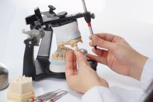 Zahnprothese reparieren und herstellen beim Zahntechniker.