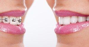 Retainer schließen die Zahnspangen-Therapie ab.