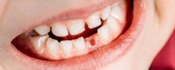 Kosten für das Zahnlücke schließen hängen von der Behandlung ab.