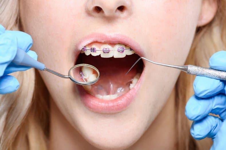 Zahnarzt untersucht Patientin mit fester Zahnspange