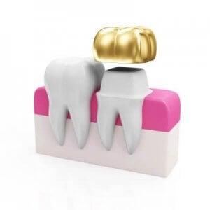 Die Gold-Krone ist Zahnersatz der gehobenen Kathegorie.