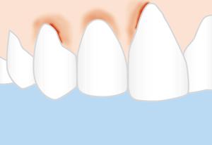 Gingivitis bedarf einer guten Mundhygiene.