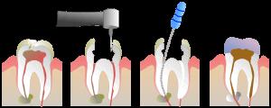 Die Wurzelkanalbehandlung rettet den Zahn.