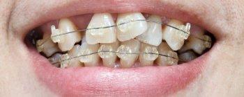 Zahnfehlstellung