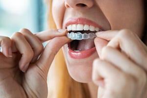 Harmonieschiene: Die unsichtbare Zahnspange ist für Dritte kaum sichtbar.