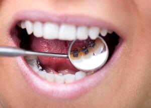 Unsichtbare Zahnspange - linguale Zahnspange