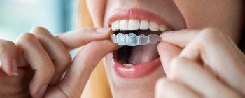 Dr Smile: Kosten, Erfahrungen und Alternativen zu den Zahnschienen