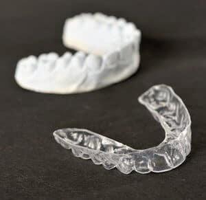 Invisalign Alternativen: Wettbewerber und Zahnkorrektur von zu Hause aus - Zahnabdruck